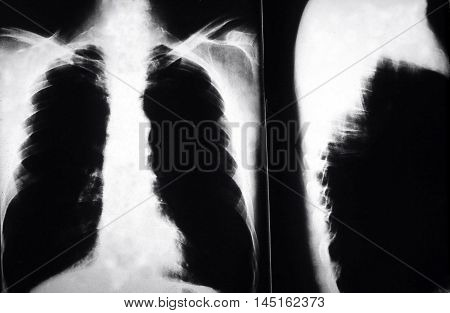 X ray of a man who smoked cigarettes with lung cancer,