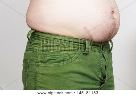 Weight gain due to improper diet. Fatty side and small pants