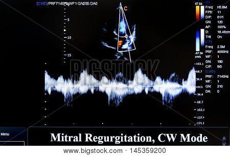 Colourful Ultrasound Monitor Image. Mitral Regurgitation