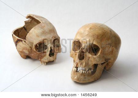 Real Skull Of Human