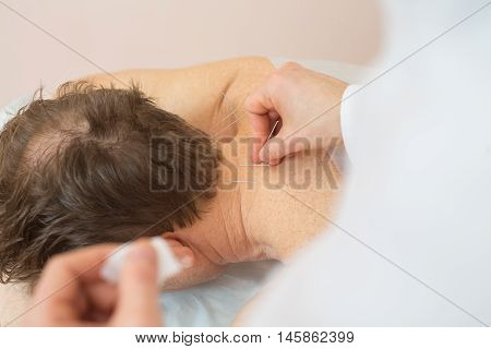 Photo of acupuncture treatments placement of medical needles on the patient close-ups