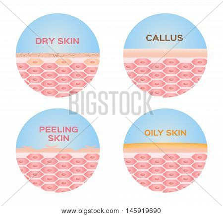dry , peeling , callus and oily skin 4 set vector
