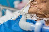 Patient Asian Elder Women 80s Do Tracheostomy Use Ventilator For Respiration Breathing Help On Patie poster
