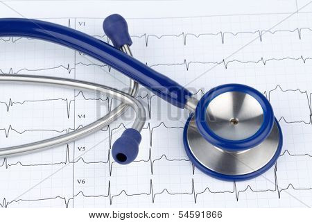stethoscope and electrocardiogram, symbol photo for heart disease and diagnosis