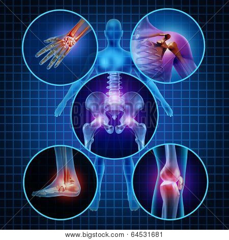Painful Joints poster