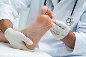 stock photo of chiropodist  - Doctor dermatologist examines the foot on the presence of athlete - JPG