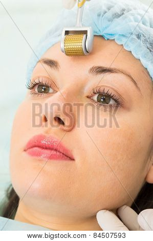 Medical cosmetic procedure