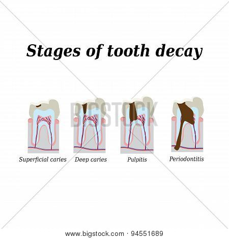 Stages of development of dental caries. Vector illustration on isolated background