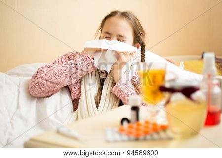 Little Girl Lying In Bed And Blowing Nose In Paper Handkerchief