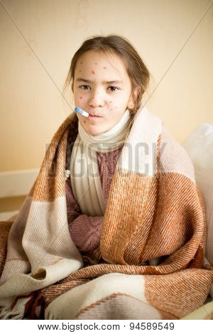 Portrait Of Sick Girl With Chickenpox Measuring Temperature