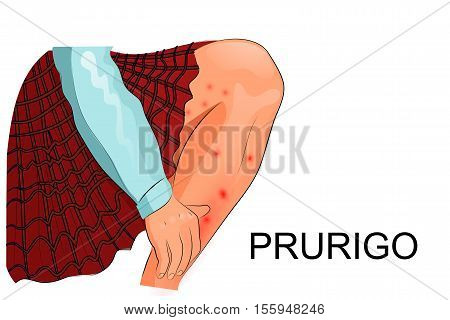 illustration of pruritus itching and skin lesions in a child