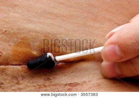 Desinfección de sutura