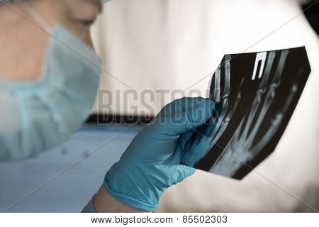 A female doctor is looking at a x-ray