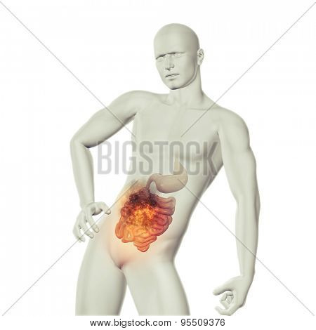 3D render of a male medical figure with fire effect in stomach with exposed guts