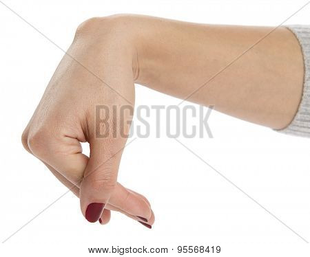 Epidermoid cyst on caucasian female wrist isolated on white background.