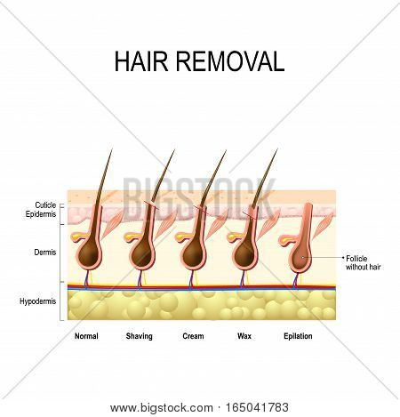 Hair removal with wax cream epilation and shaving. The height of the removal of the hair shaft. different methods.