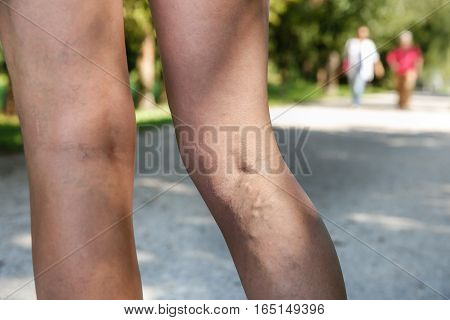 Painful varicose and spider veins on womans legs who is active and working out self-helping herself in overcoming the pain. Two active seniors in the background. Vascular disease varicose veins problems active life concept.