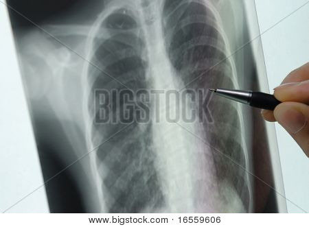 pen showing X-ray picture on screen