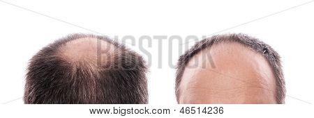 Perda de cabelo