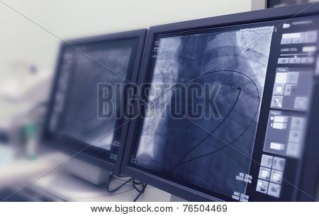 The MRI device