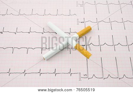 Smoking Kills Tsontsept. Two Cigarettes In The Form Of A Cross On A Background Of The Electrocardiog