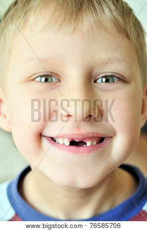 Smile Without Tooth
