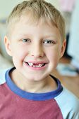 picture of tooth-fairy  - little boy showing that he lost milk tooth - JPG