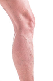 picture of varicose  - Varicose Veins on the legs of woman  - JPG