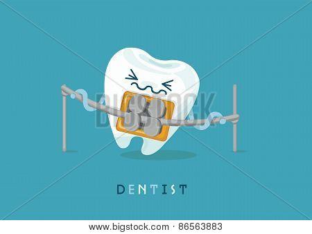 Braces tooth