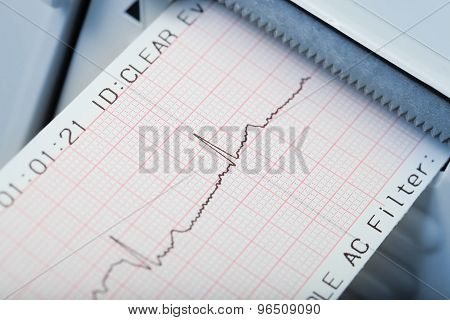 Rapid Diagnosis Of Cardiac Rhythm Disorders. Macro Photo
