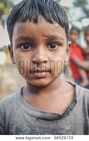 HAMPI, INDIA - 31 JANUARY 2015: Indian boy with scar under nose in street. Post-processed with grain, texture and colour effect.