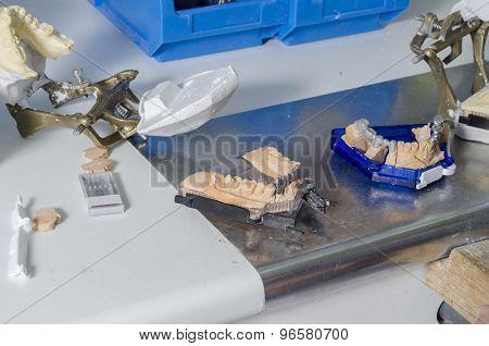 Dental Molds Of Human Teeth.