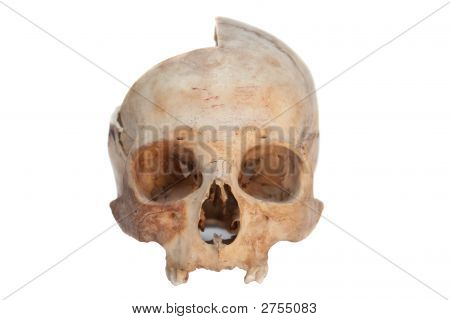 Real Skull Of Human. Isolated.