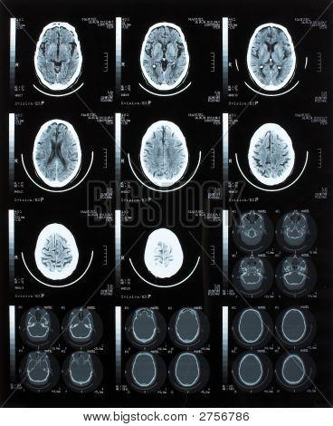 Tomografía del cerebro