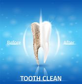 Realistic Illustration Tooth Clean In 3d Vector. Demonstration Effect Before And After Use Whitening poster
