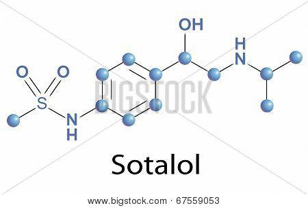 Sotalol