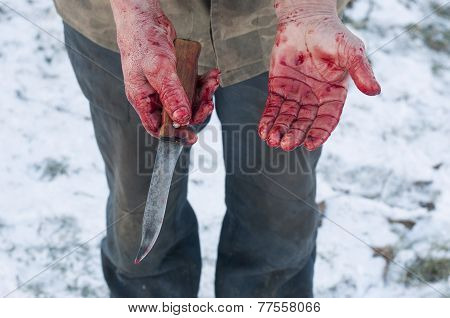 Hands Holding Knife With Blood