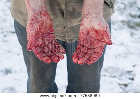 Hands With Blood