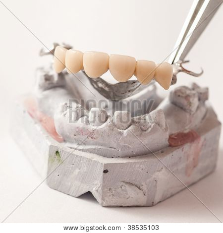 Dental Prothetic laboratory, technical shots