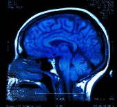 stock photo of mri  - magnetic resonance image  - JPG
