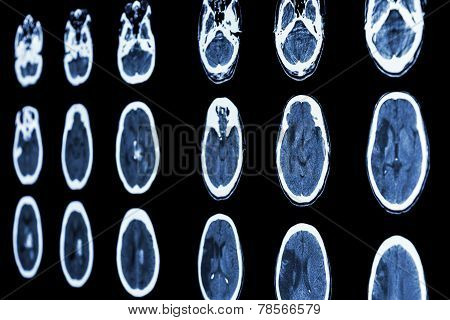CT scan of brain show ischemic stroke and hemorrhagic stroke