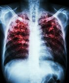 "foto of tuberculosis  - ""Pulmonary tuberculosis"" Film chest x-ray show interstitial infiltration both lung due to mycobacterium tuberculosis infection - JPG"