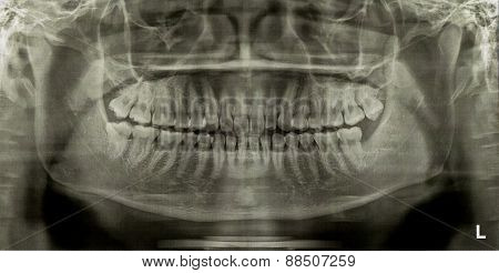 Dental Radiograph X-ray