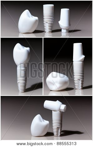 Models of dental
