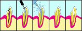 stock photo of toothache  - Dental root canal treatment illustrated step by step - JPG