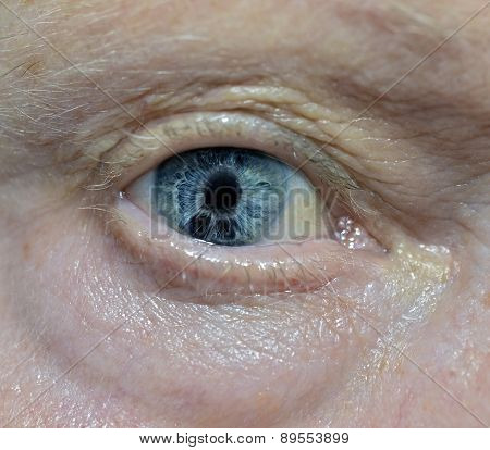 Iridocorneal Endothelial Syndrome- Eye Problem Examination