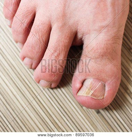 Damaged toenail