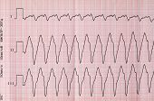 picture of flutter  - Emergency Cardiology - JPG