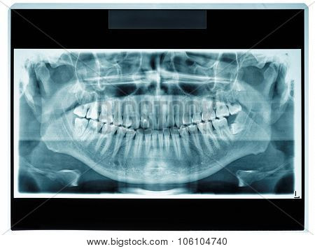 Panoramic dental X-ray slide, patient data removed