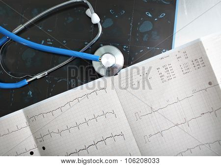 Discussion On Documents (ecg) Of The Patient